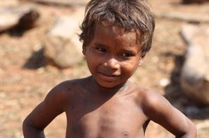 Common diseases in children- Pneumonia, malnutrition and ...