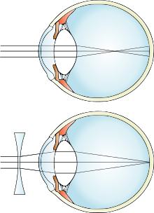 Rectification of Myopia defect with Concave lens