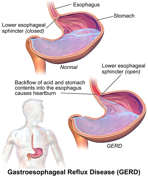 Acid Reflux caused by Acidity Problem