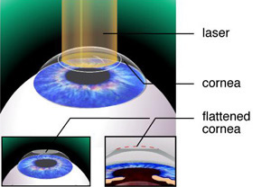 lasik vision case Is lasik right for you learn more about vision correction options available at vison care of maine serving bangor in this case you are far sighted.